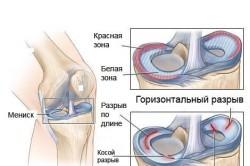 Схема разрыва мениска коленного сустава