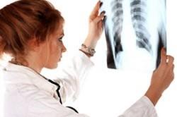 Рентгенография позвоночника для диагностики артроза