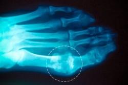 Рентген стопы при подагре