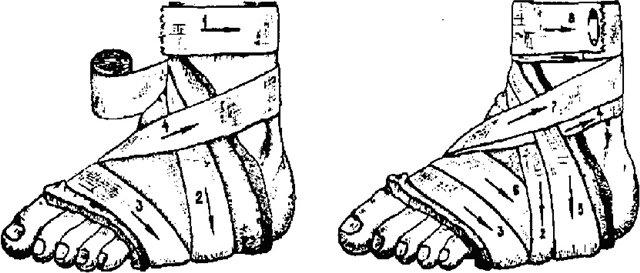 Схема наложения повязки на