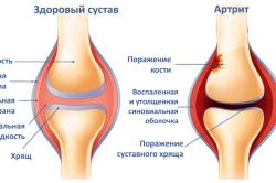 Коленный сустав в норме и пораженный артритом
