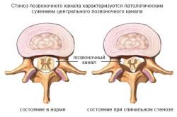 Отличие нормального позвоночника от больного стенозом