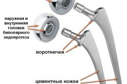 Строение протеза тазобедренного сустава