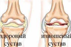 Здоровый и изношенный коленный сустав