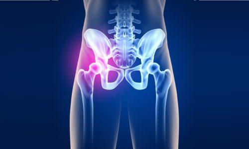 Проблема коксартроза тазобедренных суставов