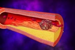 Тромб в области глубоких вен - возможное осложнение эндопротезирования