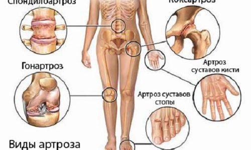 Боль и припухлость колена