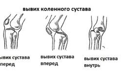 Схема вывиха коленного сустава