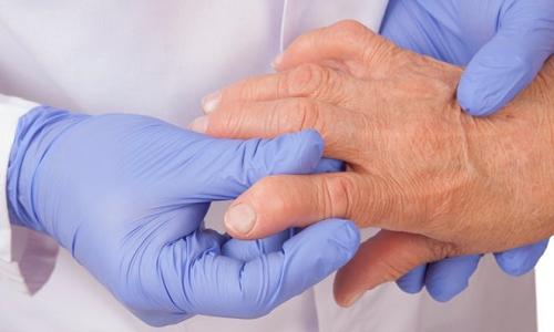 Проблема серонегативного ревматоидного артрита