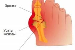 Схема подагрического артрита