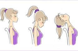 Упражнения для укрепления шейного отдела позвоночника