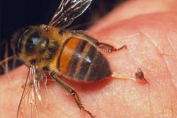 Пчелиный яд для лечения артрита ВНЧС
