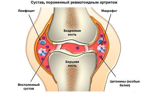 Поражение ревматоидным артритом