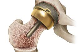Протезирование сустава при запущенном артрите