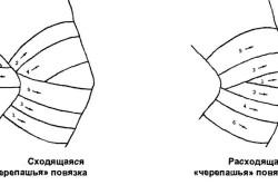Виды фиксирующих повязок