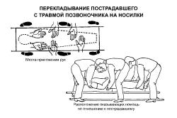 Правильное перекладывание пострадавшего с травмой позвоночника на носилки
