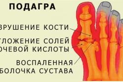 Схема подагры
