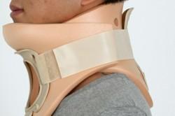 Наложение гипса при переломе шейного отдела позвоночника