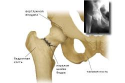 Перелом шейки бедра - причина боли в тазобедренном суставе