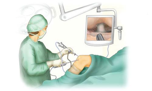 Проведение дебридмента коленного сустава
