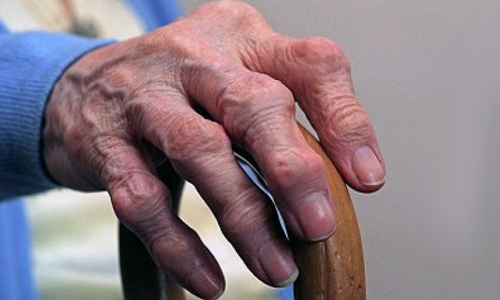 Узлы Гебердена на пальцах