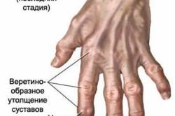Опухание суставов на последней стадии артрита
