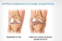 Поражение коленного сустава при артрозе