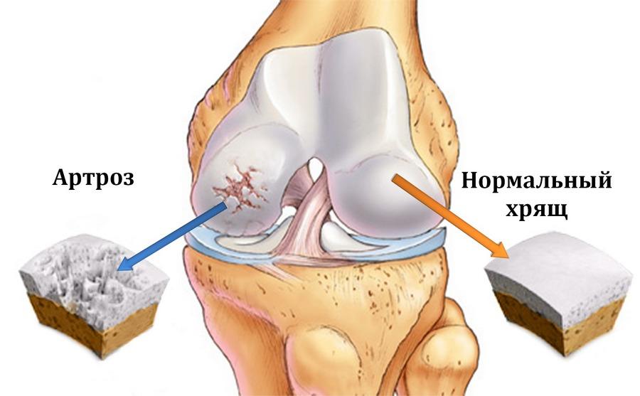 лечение желатином при артрозе артрите