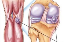 Схема гигромы в коленном суставе