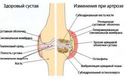Изменения в суставах при артрозе