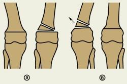 Остеотомия: а - линейная с внедрением костного трансплантата; б - клиновидная с удалением костного клина