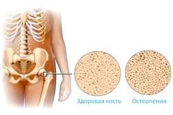 Отличие здоровой кости от больной остепенией