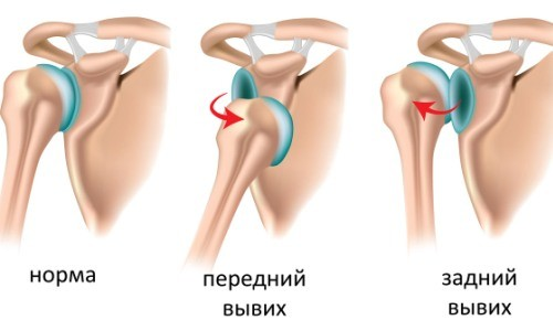 Виды вывихов плечевого сустава
