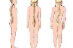 Сколиоз позвоночника - последствие дисплазии тазобедренного сустава