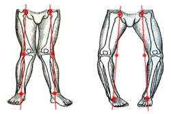 Варусная деформация коленных суставов