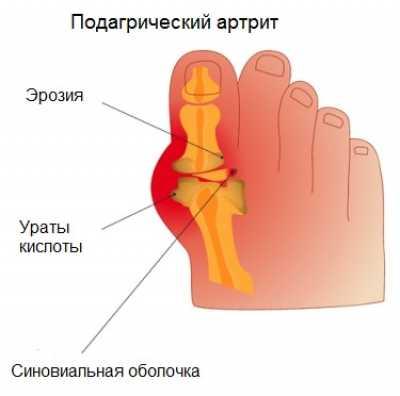 Лечение подагрического артрита: препараты и народные средства