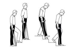 Ходьба на костылях по лестнице после эндопротезирования